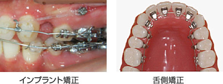 インプラント矯正と舌側矯正