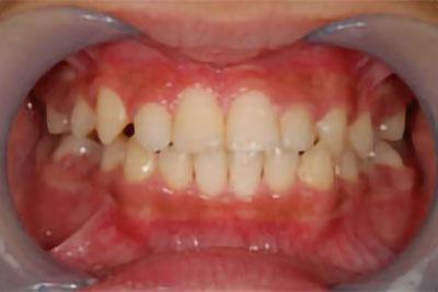 「前歯がかなり上から出てきている症例」 AFTER画像