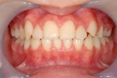 「八重歯+右上の前歯が内側にある症例」 AFTER画像