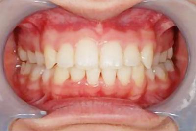 「上下の歯を抜歯して治療した症例」 AFTER画像