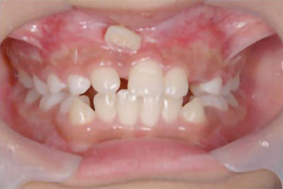 「前歯がかなり上から出てきている症例」 BEFORE画像