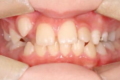 「八重歯+右上の前歯が内側にある症例」 BEFORE画像