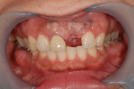 「前歯のインプラントで審美&機能どちらもUP」 BEFORE画像