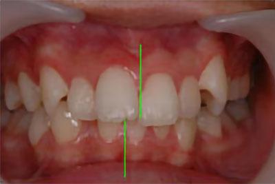 「上下の歯を抜歯して治療した症例」 BEFORE画像