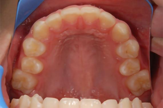 「右側の奥歯が手前に倒れている症例」 AFTER画像