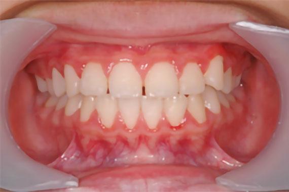「受け口かつ永久歯が出る隙間がない」 AFTER画像