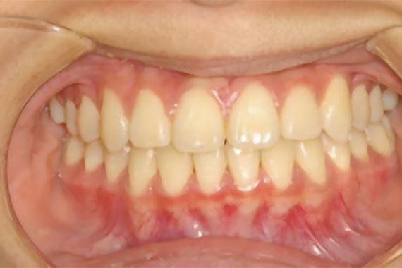 「でこぼこな歯並びを歯を抜かずに矯正」 AFTER画像