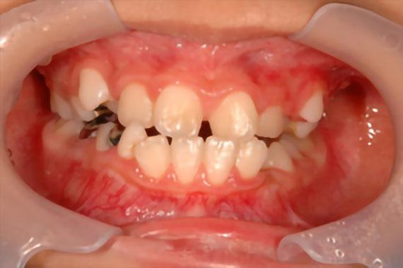 「受け口かつ永久歯が出る隙間がない」 BEFORE画像