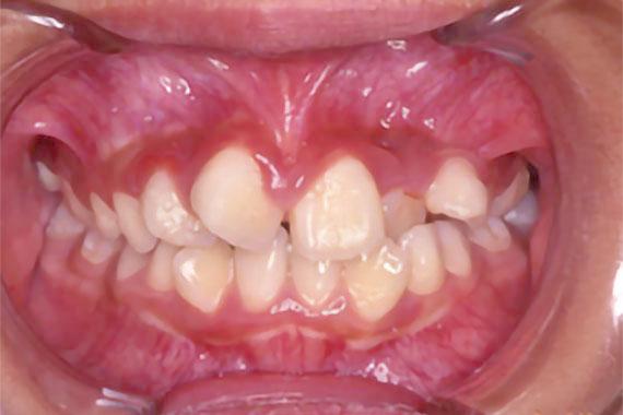 「でこぼこな歯並びを歯を抜かずに矯正」 BEFORE画像